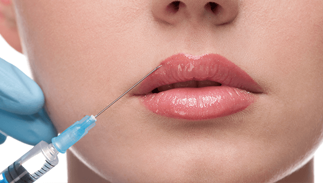 Dermal fillers & wrinkle injections
