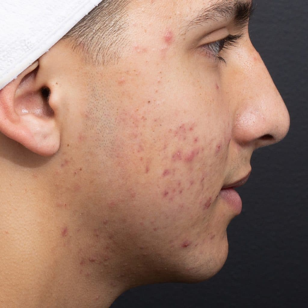 Acne Products Before