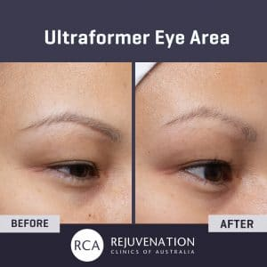 Before After Ultraformer Eye Lift