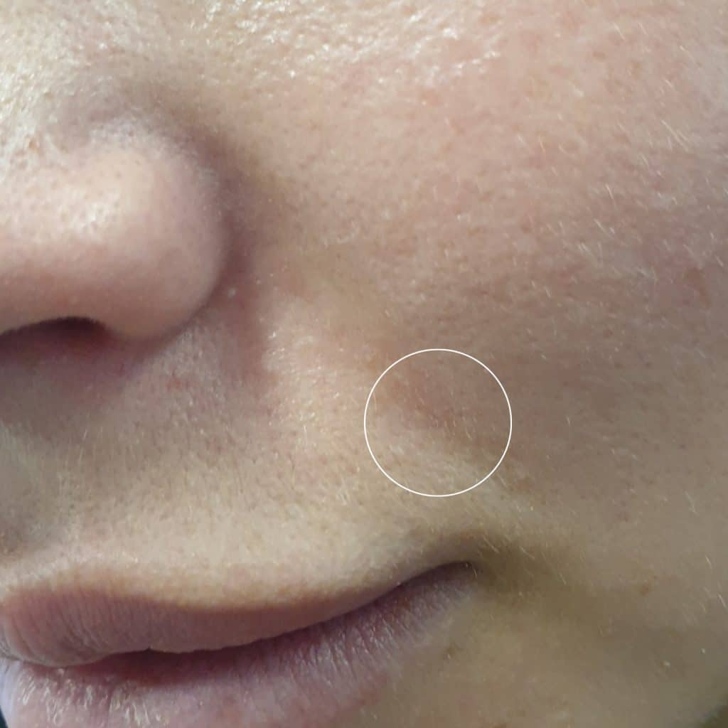Clarifying Serum Blemish After