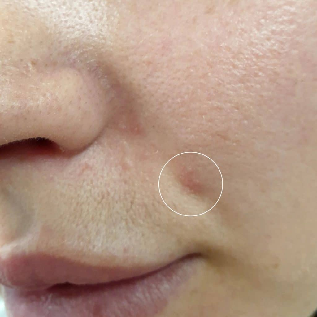 Clarifying Serum Blemish Before