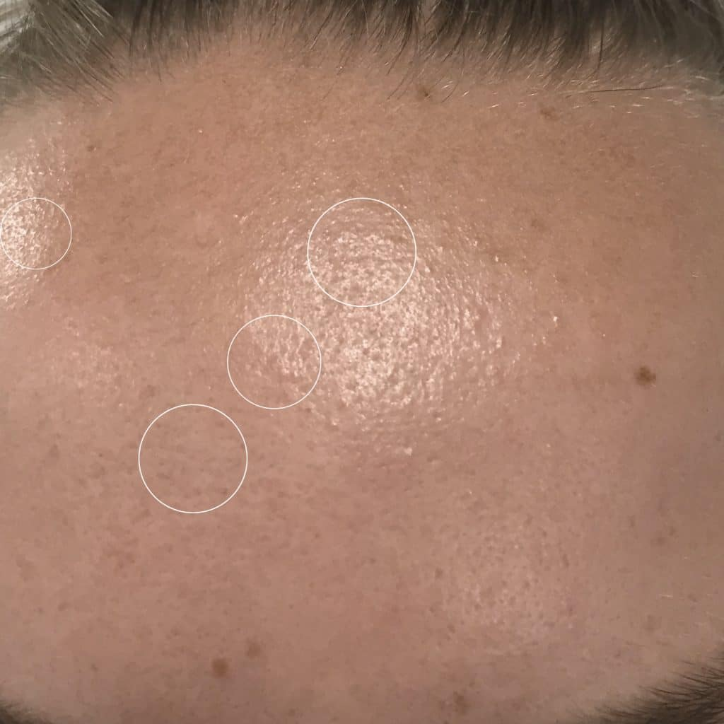 Clarifying Serum Bumps After