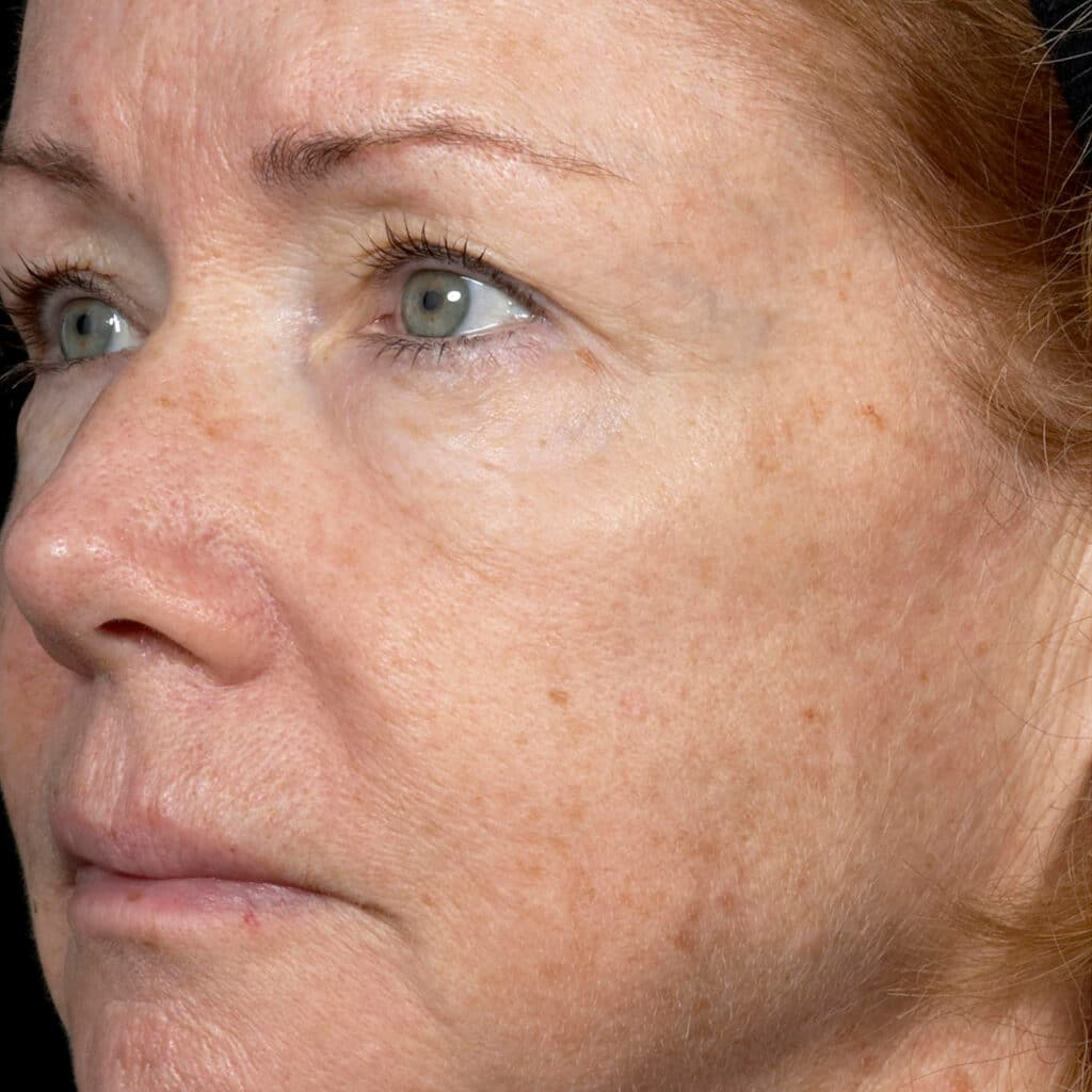 Fraxel Rejuvenation After