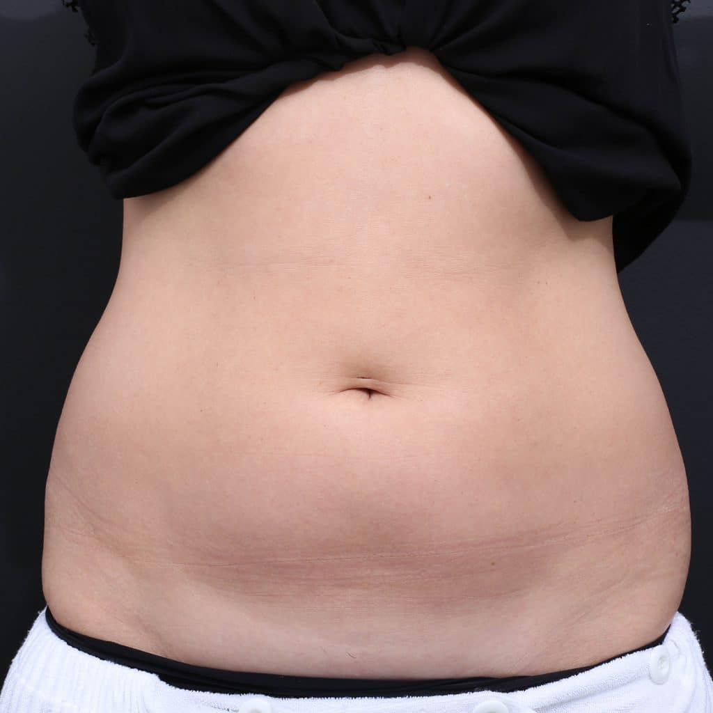 LipoBlast Belly Before