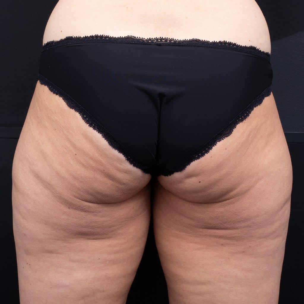 LipoBlast Thighs Before