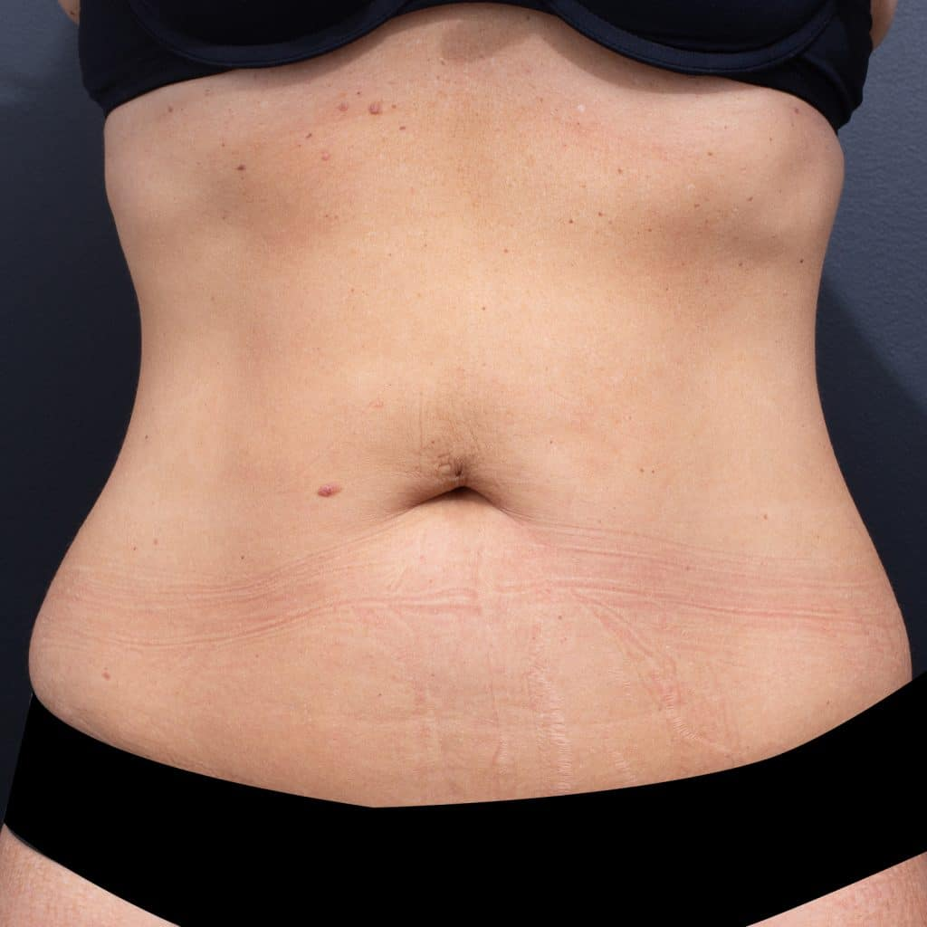 Lipoblast Belly Front After
