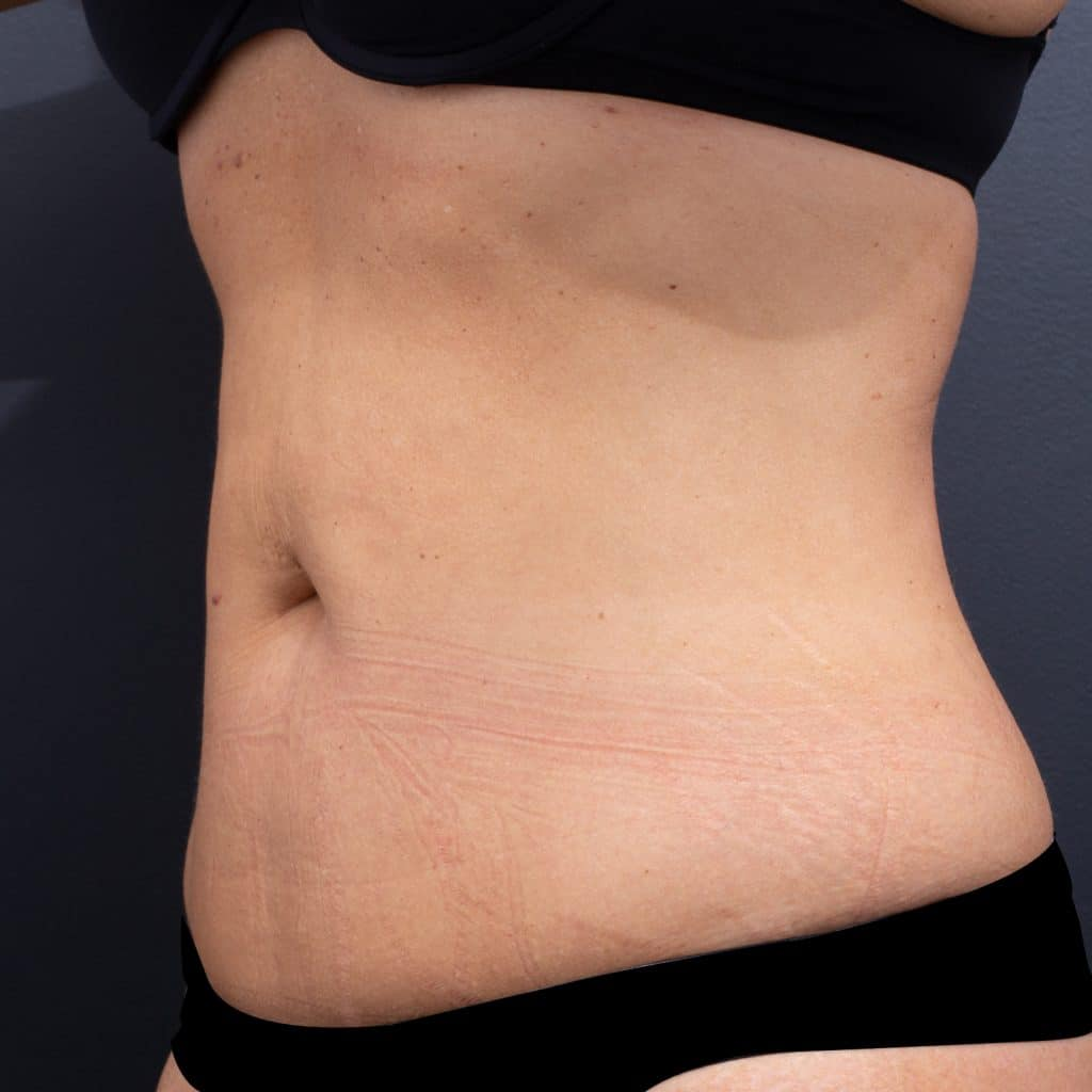 Lipoblast Belly Side After