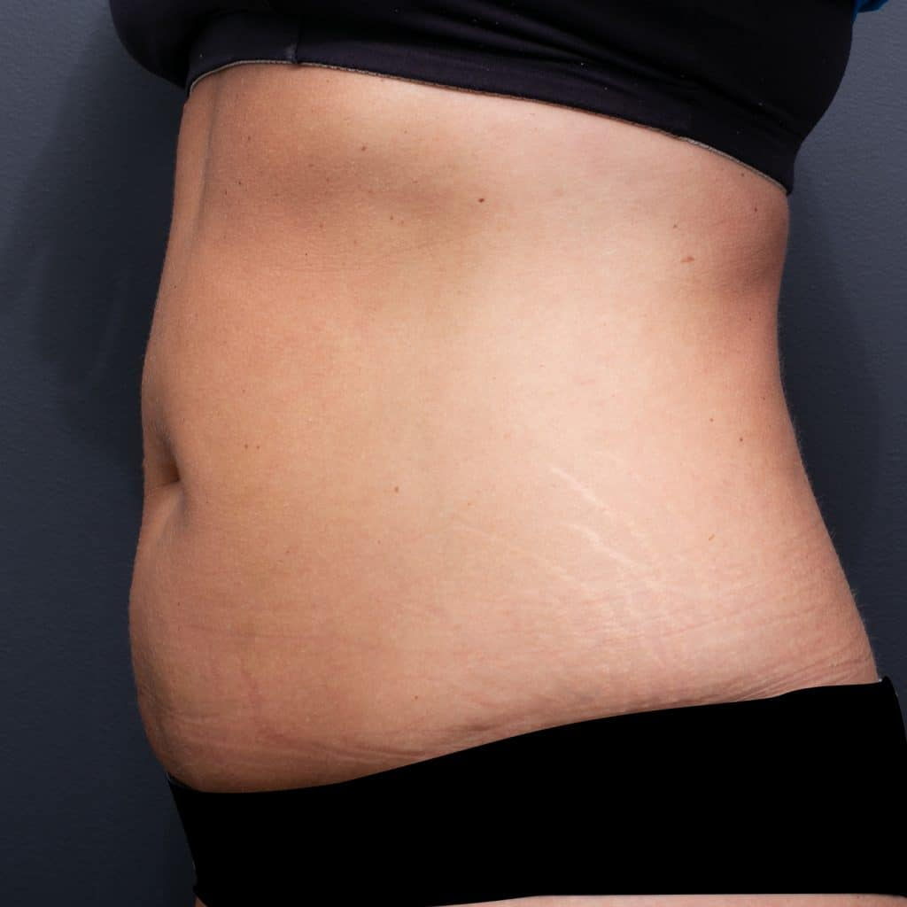 Lipoblast Belly Side Before