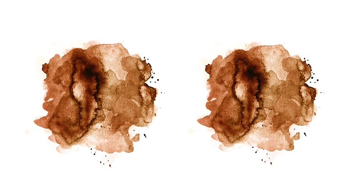 Melasma Watercolour