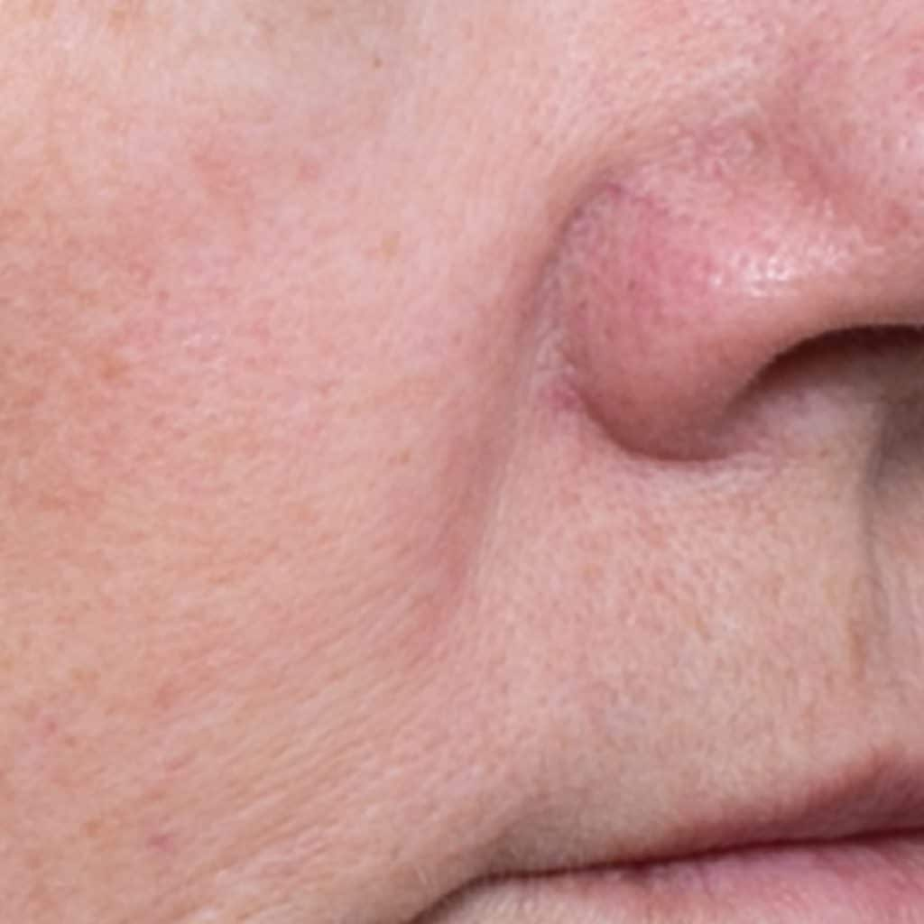 Rosacea Products After