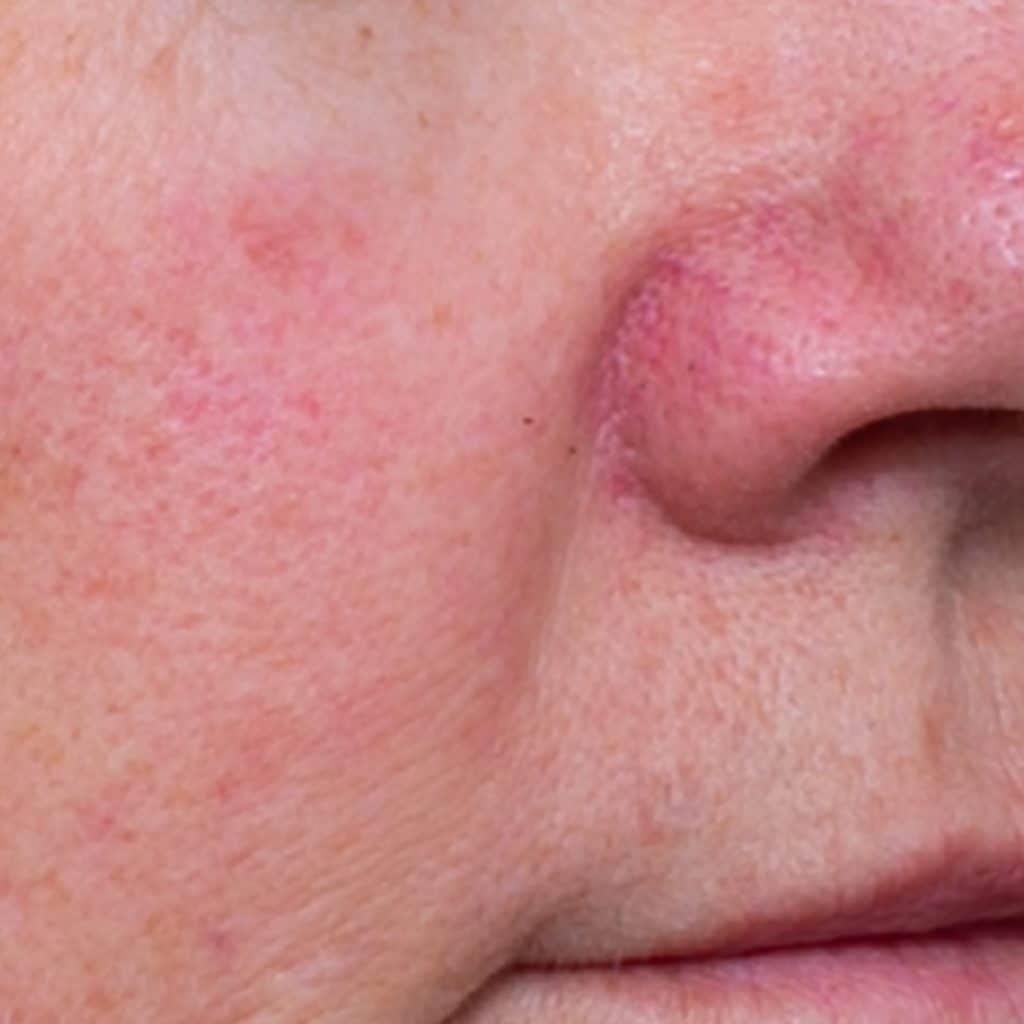 Rosacea Products Before
