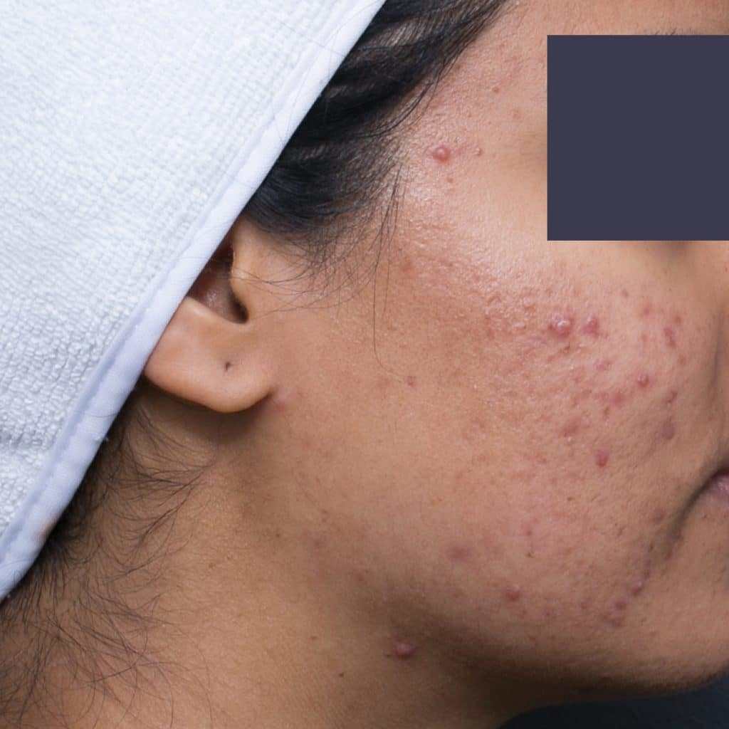 acne cheek after 1