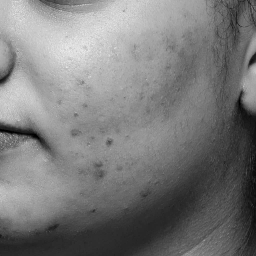 痤疮脸颊后 1