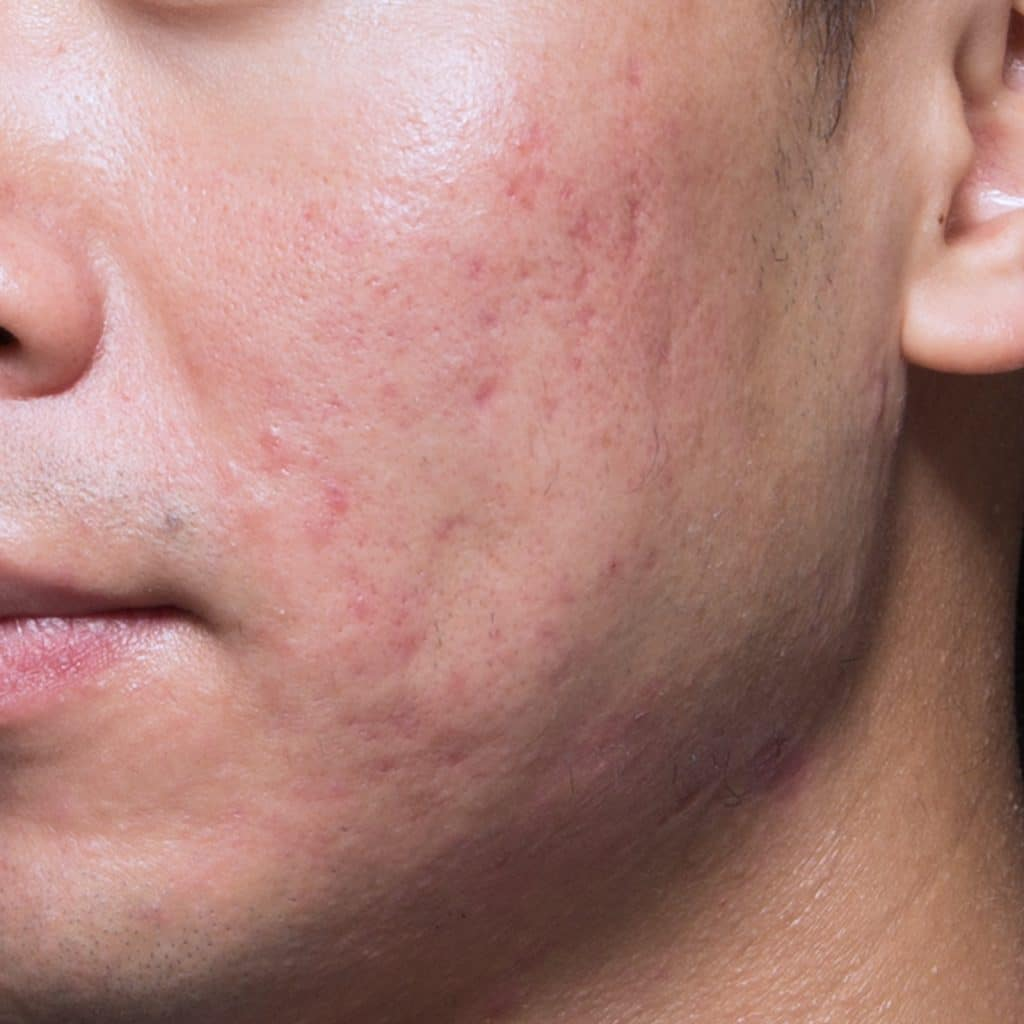 acne cheek after