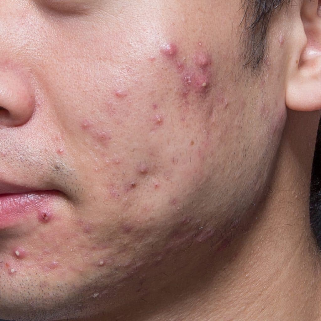 acne cheek before