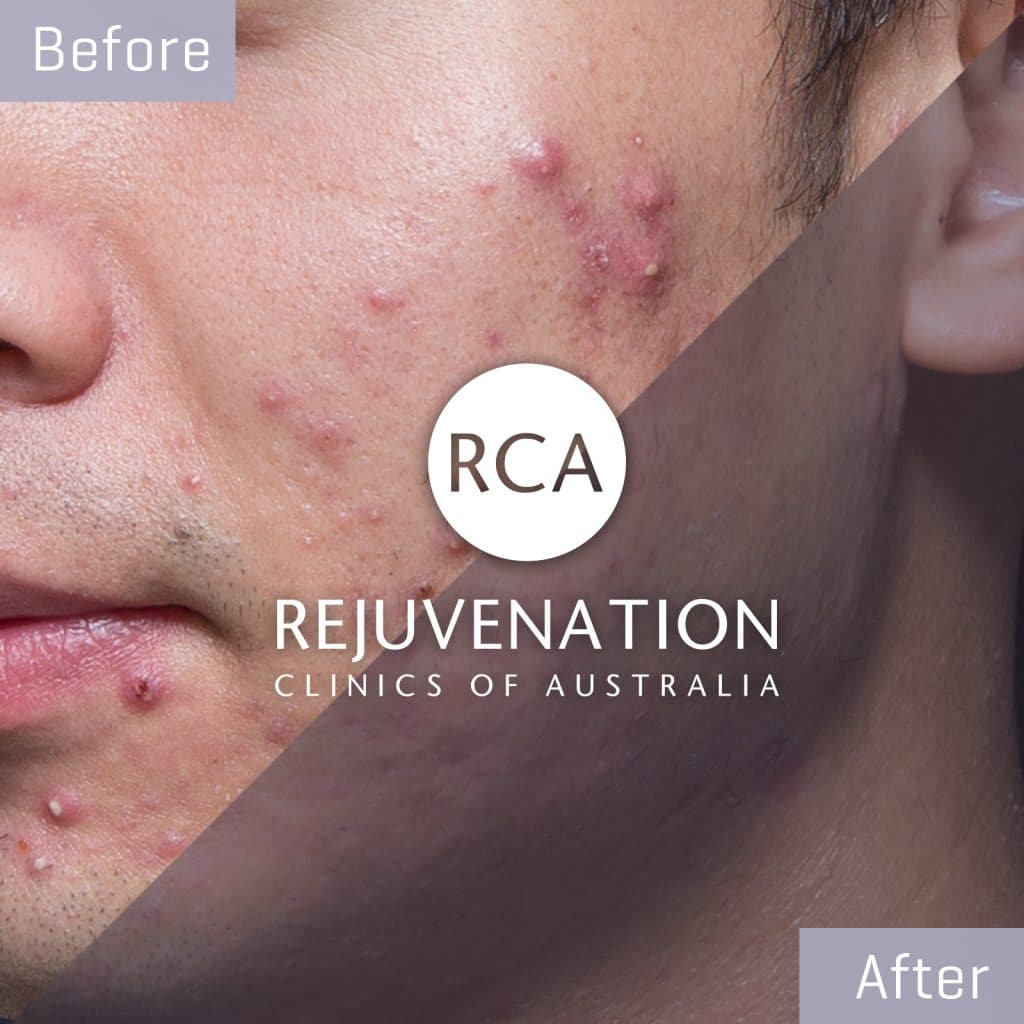 acne cheek before after