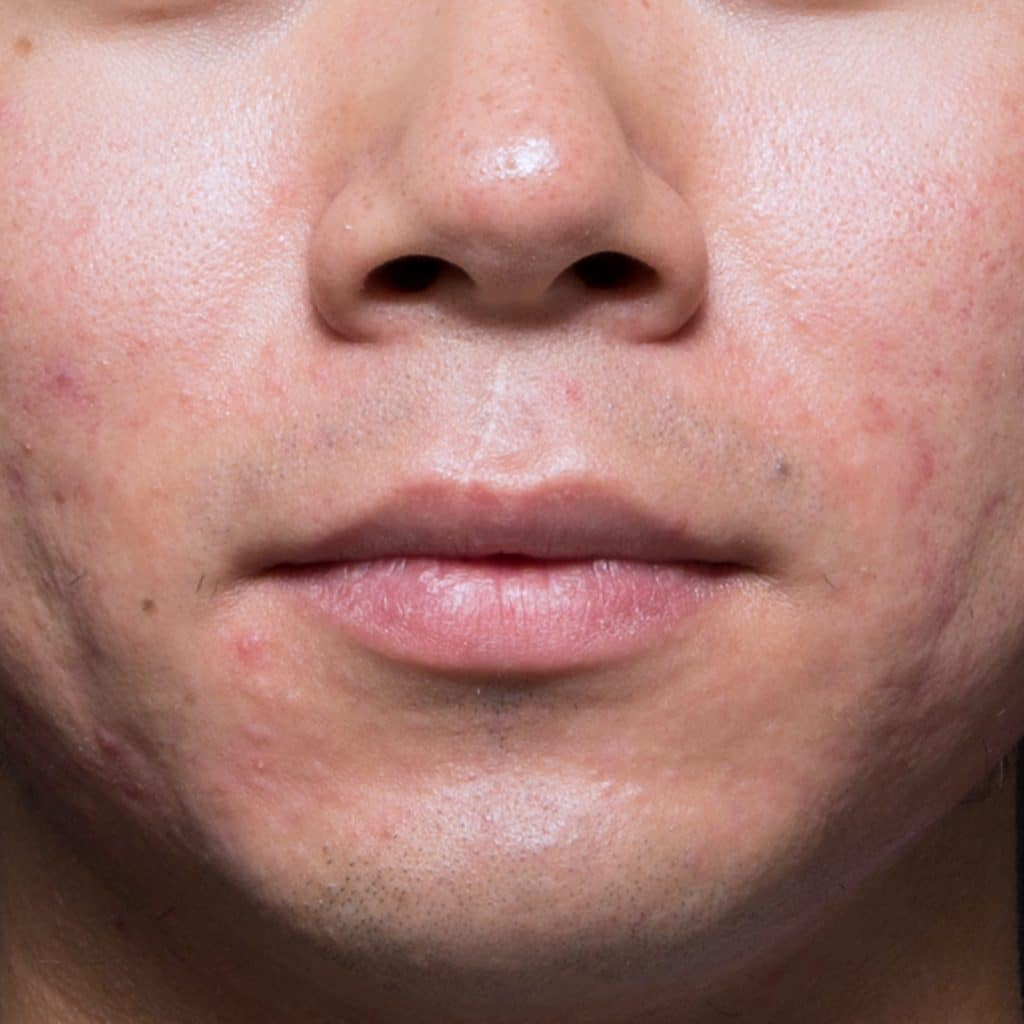 acne chin after