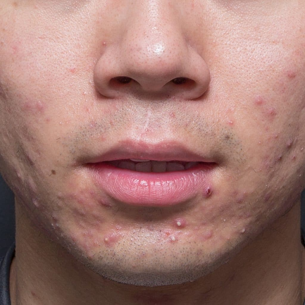 acne chin before