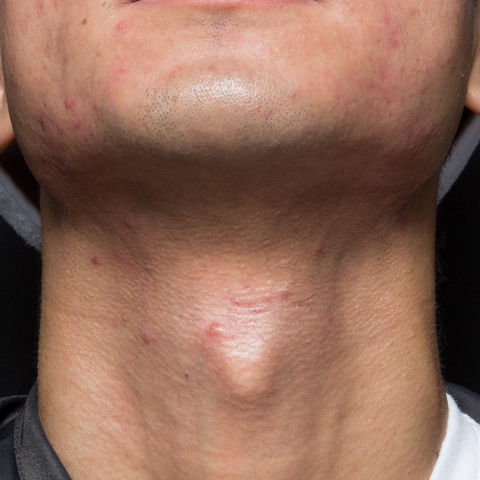 Acne Neck After