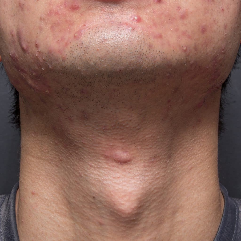 acne neck before