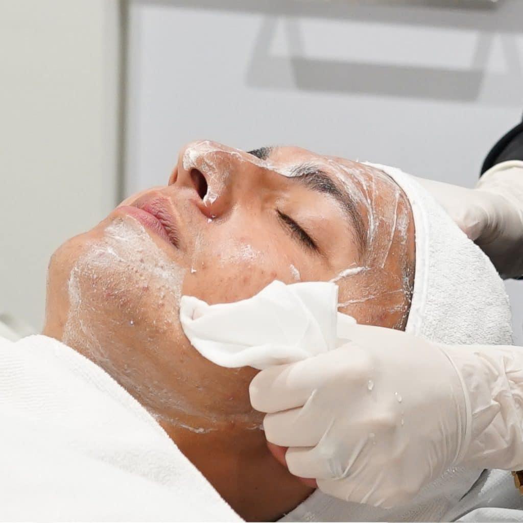 acne oxygen peel