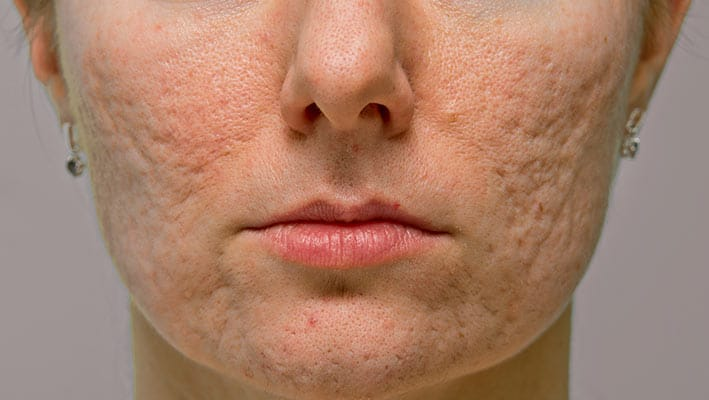 acne scarring face