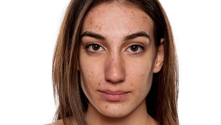 acne skin condition