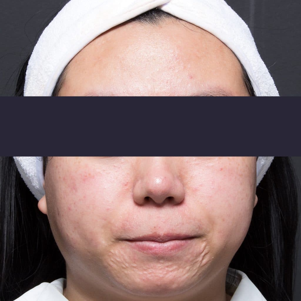 Active acne patient after treatment