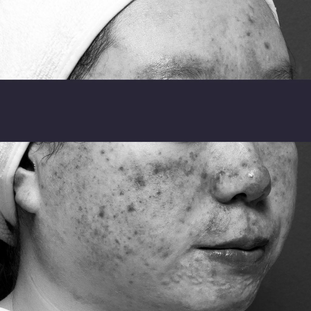 Active acne patient face profile after treatment