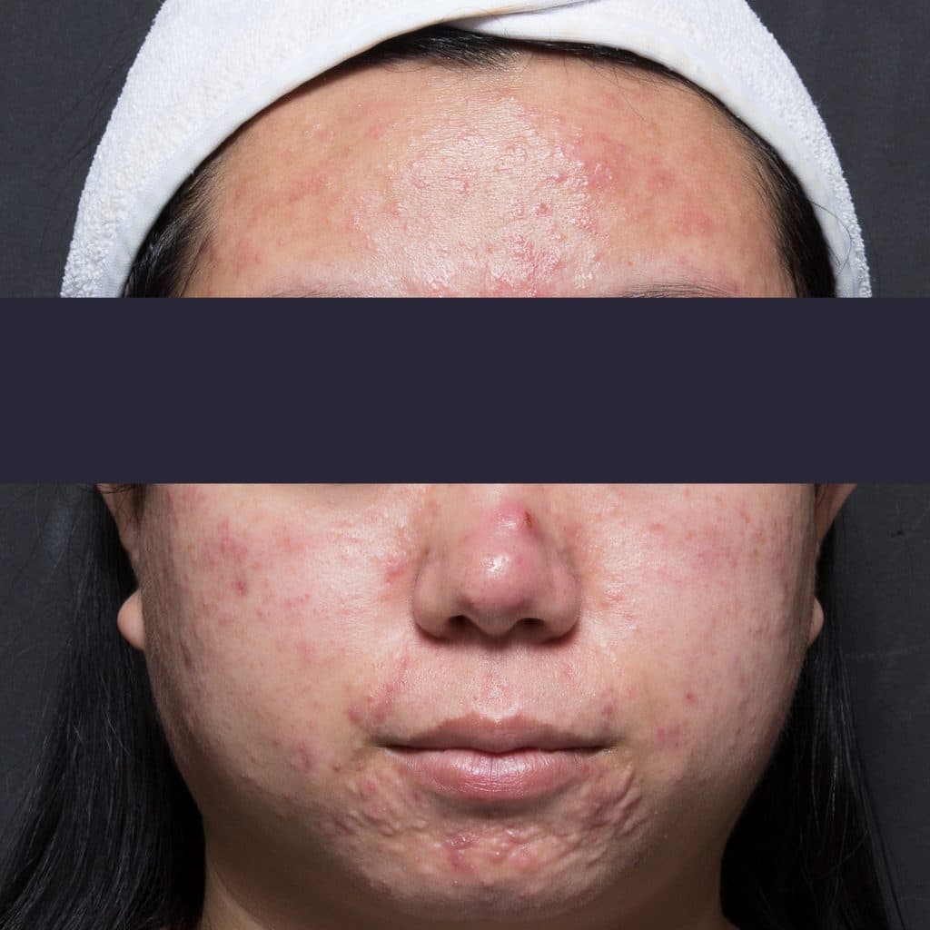 Active acne patient before treatment