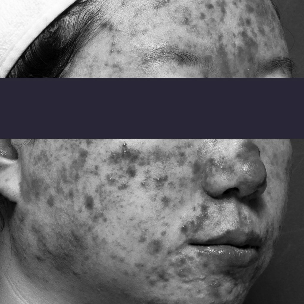 Active acne patient face profile before treatment
