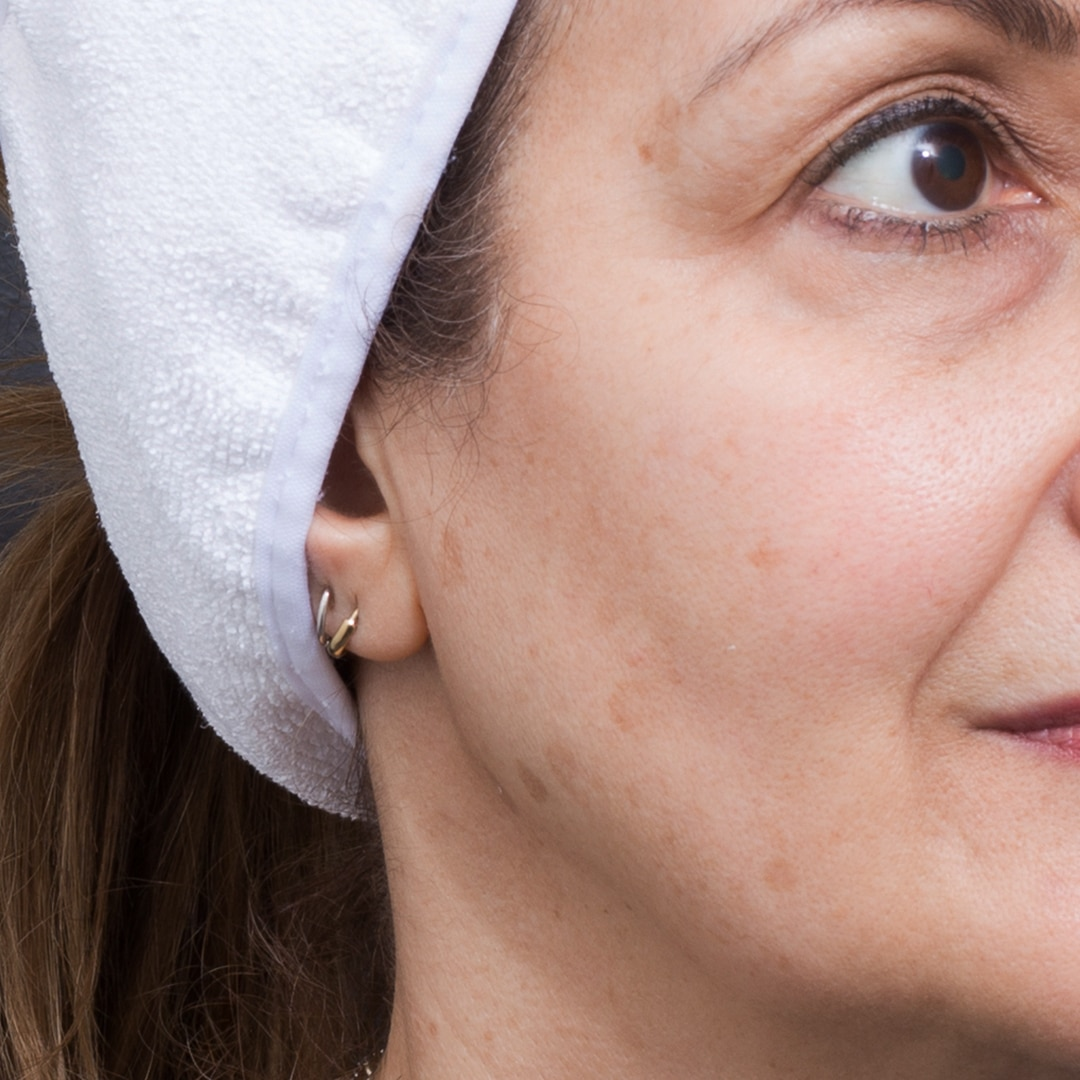 Clogged Pores? Get Professional Solutions To Clean Pores