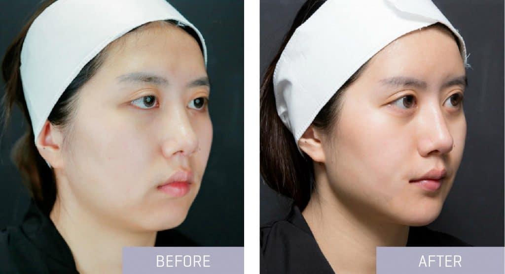 before after dermal filler chin
