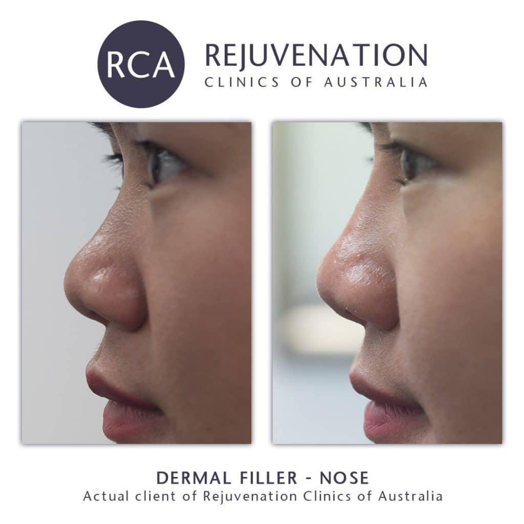 before after dermal filler nose