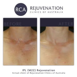 before after redness sun damage decolletage 2