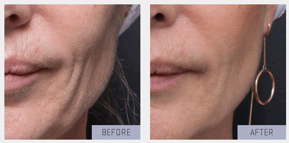 before after skintightening ultrasound (2)