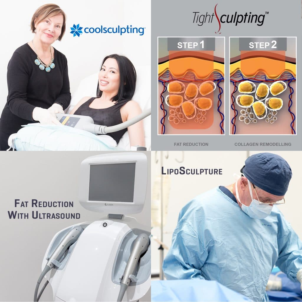 body cont treatments