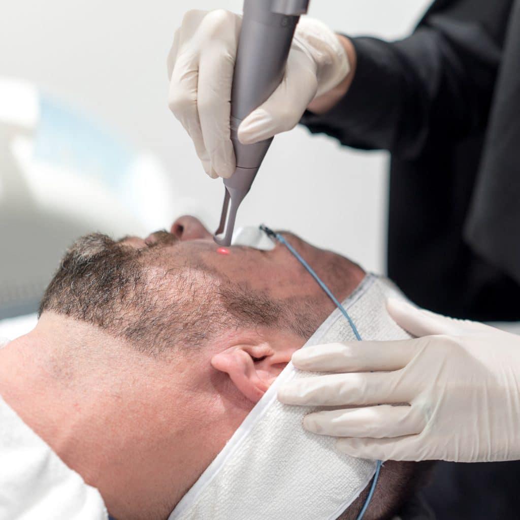 china doll facial rejuvenation treatment