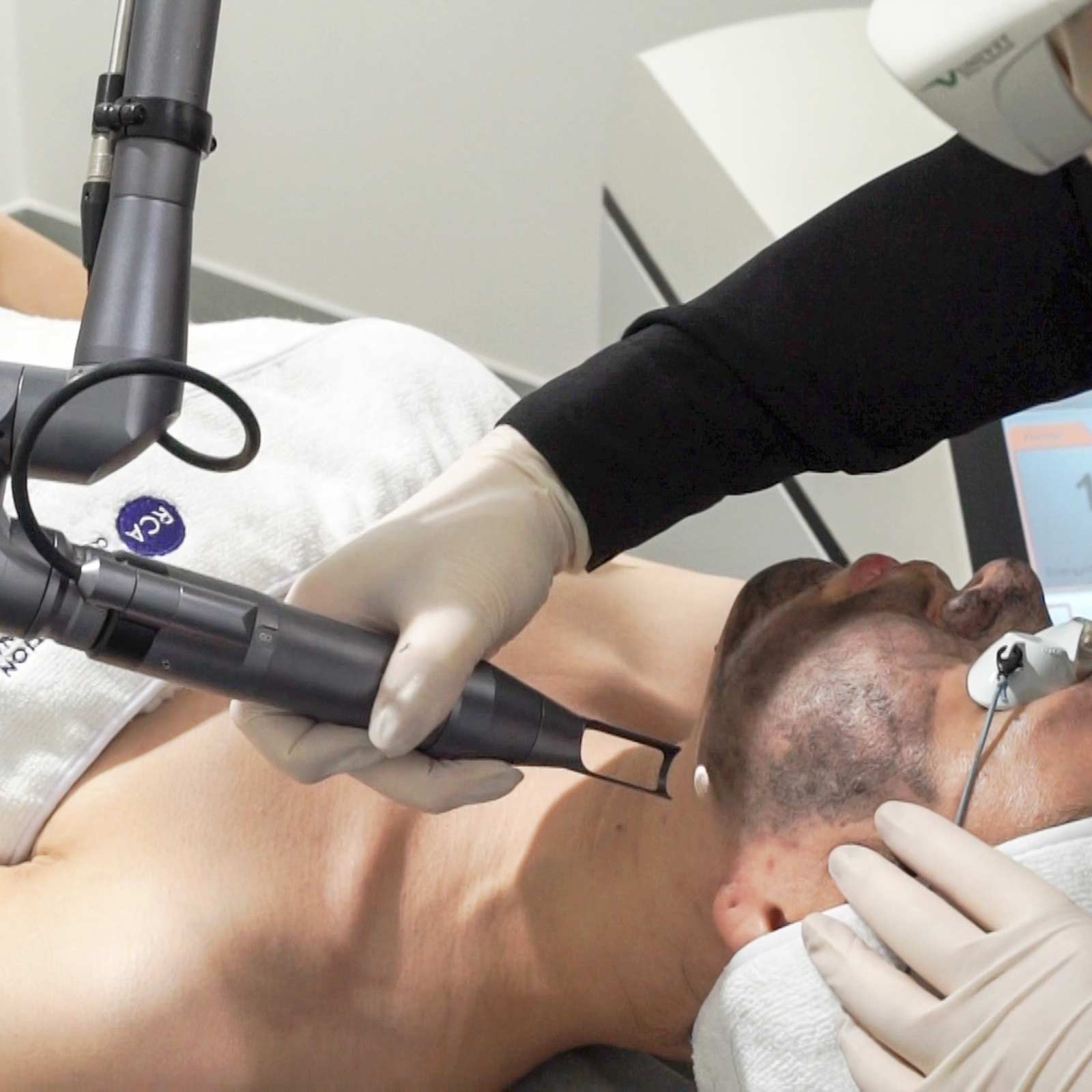 china doll rejuvenation laser treatment