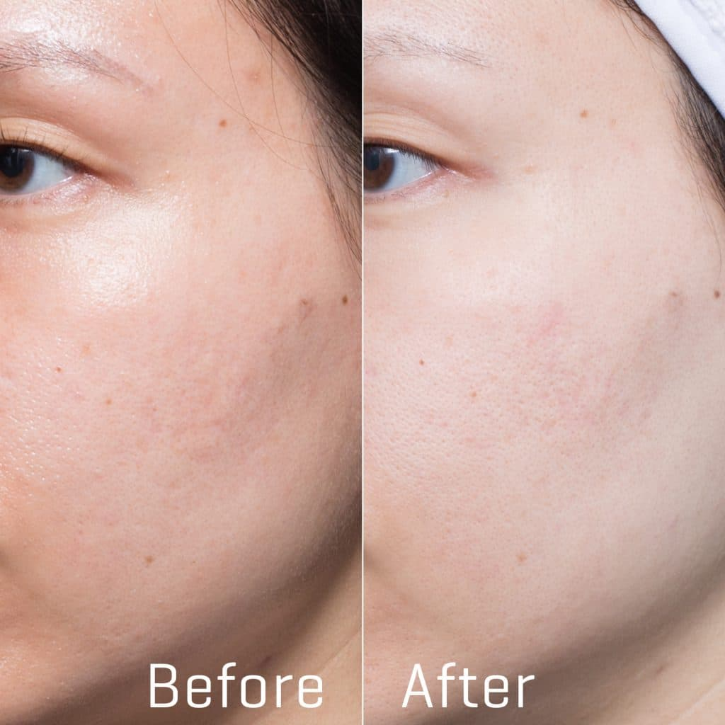 chine doll rejuvenationbefore after