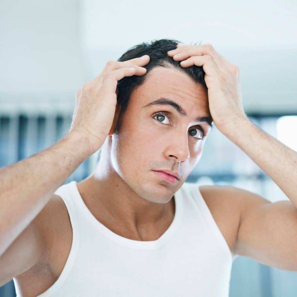 concern hair loss rca