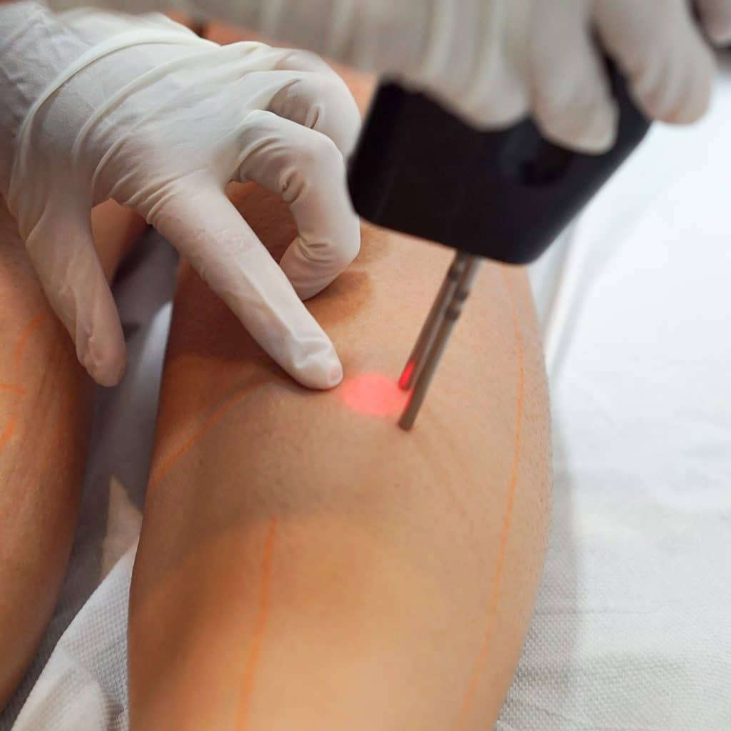 concern laser hair removal