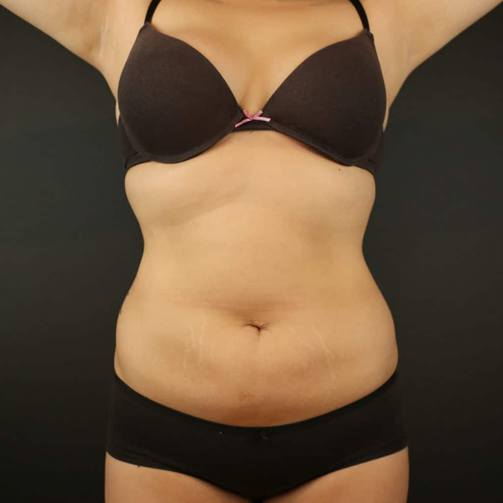 Coolsculpting treatment abdomen after
