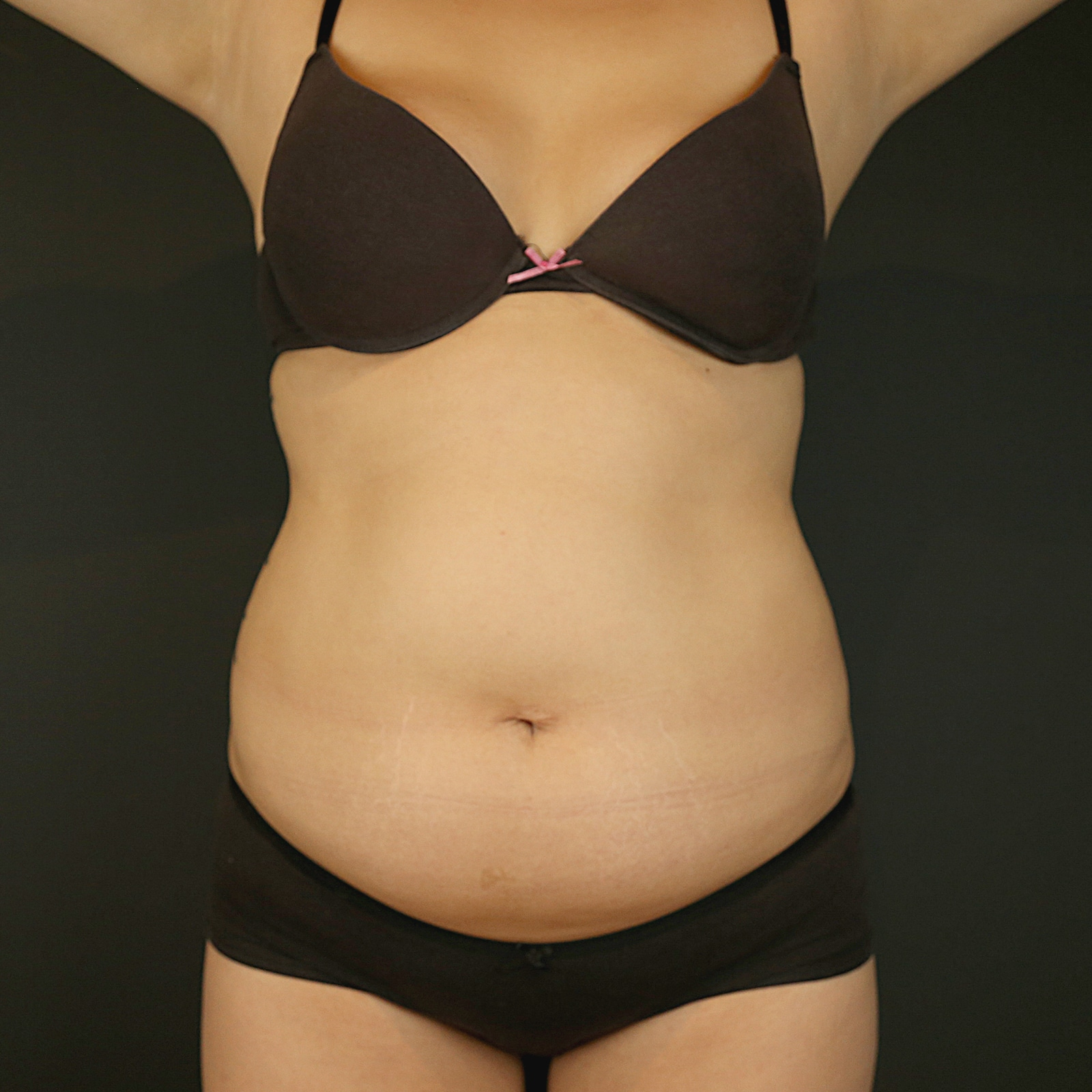 Coolsculpting treatment abdomen before