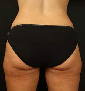 Coolsculpting treatment back after