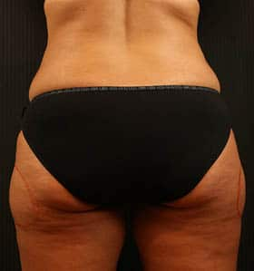 Coolsculpting treatment back before