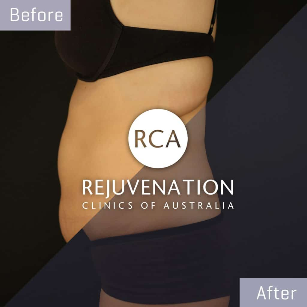 coolsculpting before after stomach