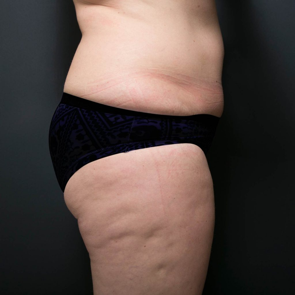 coolsculpting side after 1