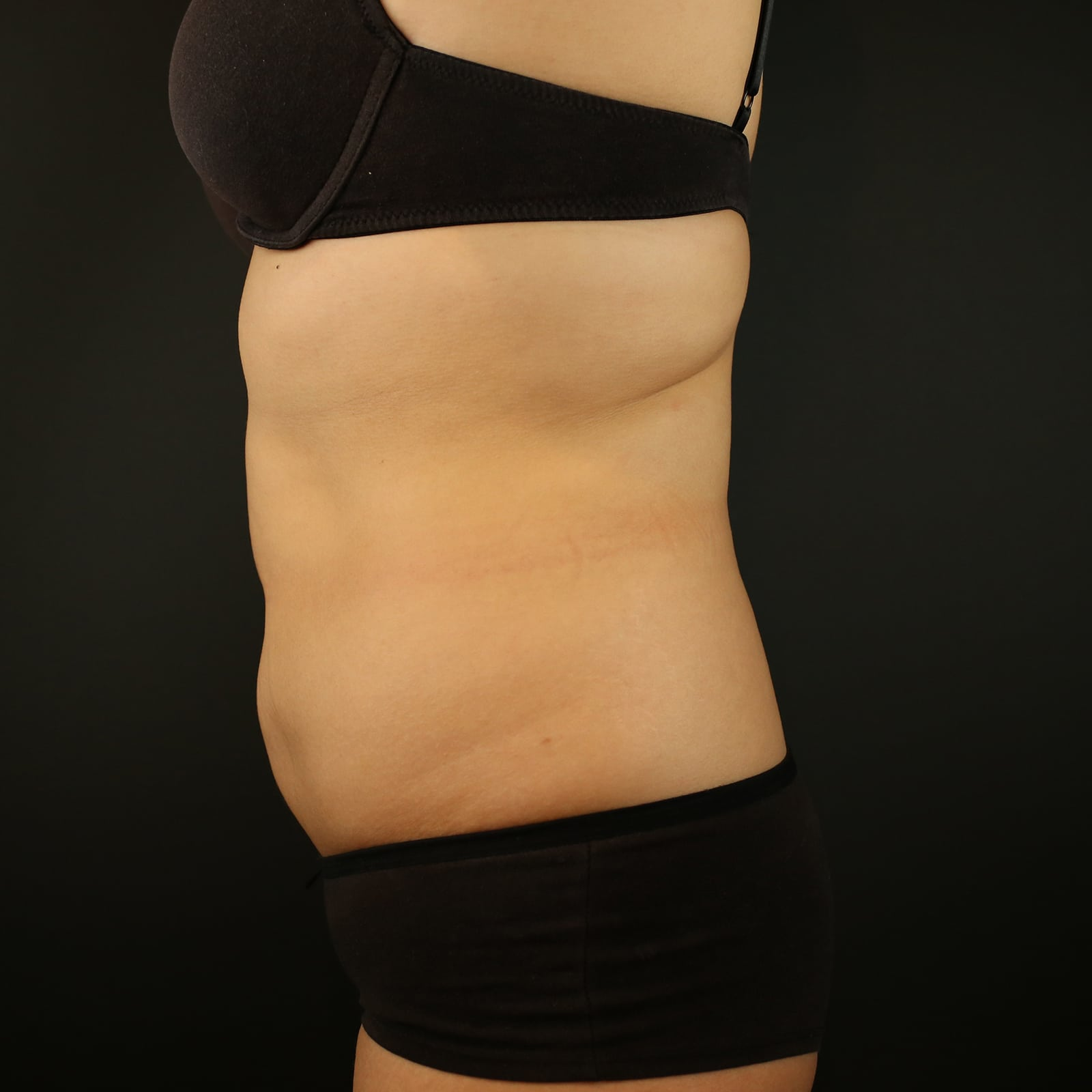Coolsculpting treatment stomach side after treatment
