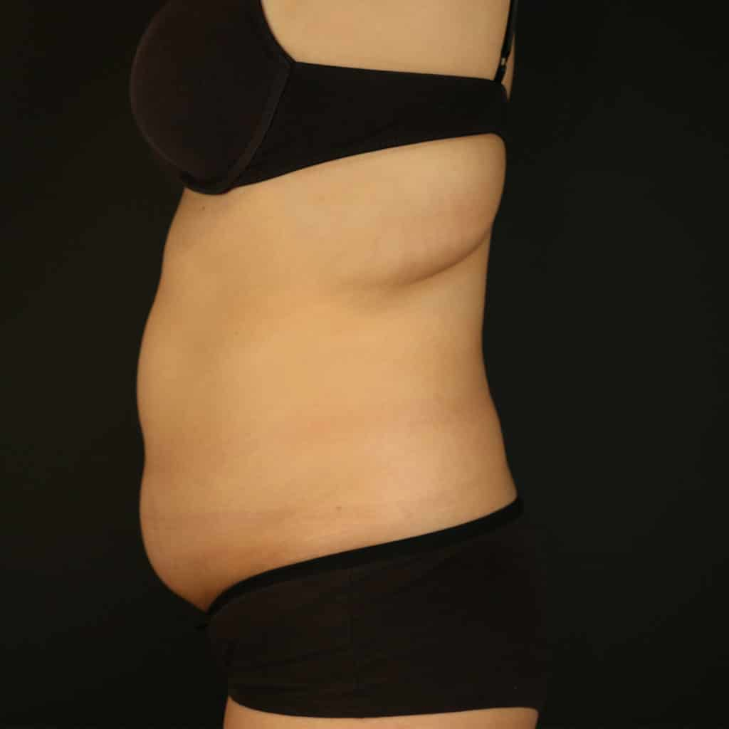 Coolsculpting treatment stomach side before treatment